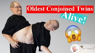 The oldest still living conjoined twins! You will be surprised!~Body Bizarre