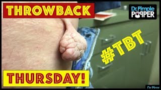 Reminiscing with Dr Pimple Popper TBT Part 12