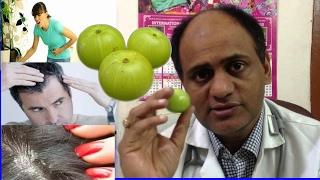 আমলকি হটাবে জটিল ও মরণব্যাধি সহ ২০টি রোগ-দেখেনিন। Amazing Health Benefits Of Amla|Bangla health Tips