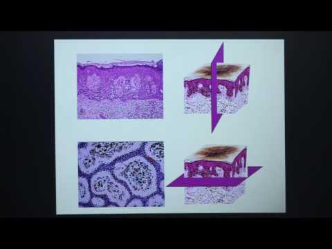 Microscopía Confocal. Fundamentos básicos y Aplicaciones clínicas en Tumores Cutáneos