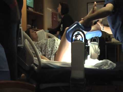 Delivering Anna without Epidural