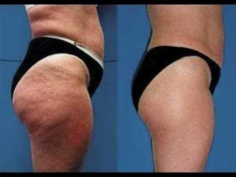 Arrasa Con La Celulitis de las Piernas y Glúteos Rápido Get Rid of Cellulite