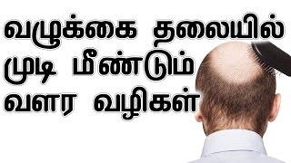 வழுக்கை தலையில் முடி மீண்டும் வளர வழிகள்   How To Regrow Hair On Bald Head In Tamil