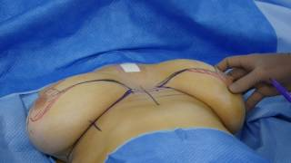 BREAST REDUCTION SURGERY PATIENT B