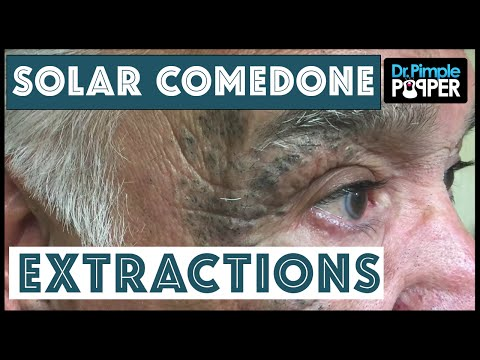 Extensive Solar Comedone Extractions, Part 1: Nickname