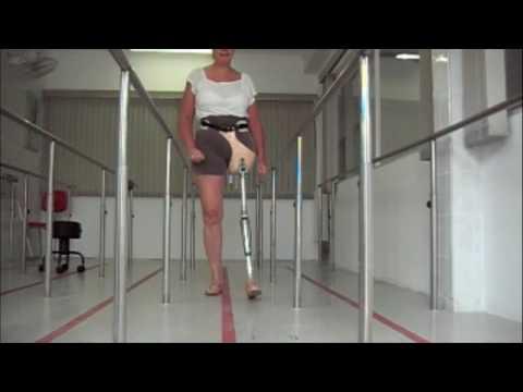 Protese com Novo Cartucho p Desarticulação de Quadril Ortopedia Conforpés