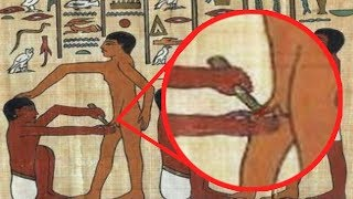 10 Historical Health Tips That Killed People