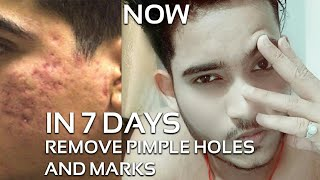 REMOVE PIMPLE HOLES AND MARKS IN 7 DAYS | Reduce pimple hole| Remove pimple marks and open pores