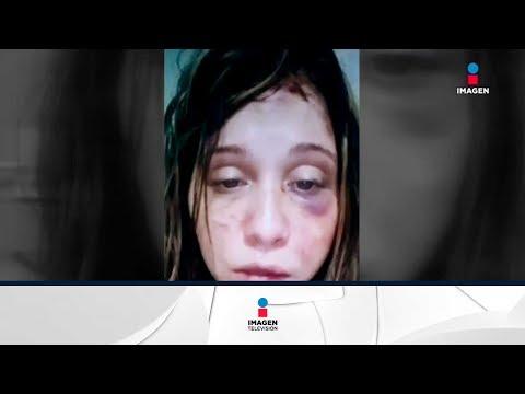 Xxx Mp4 Antes De Ser Asesinada Grabó Videos Donde Lucía Golpeada Y Dijo Estar Amenazada De Muerte 3gp Sex