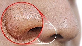 Do THIS to Remove Blackheads From Your Nose
