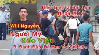Cận Cảnh Will Nguyễn -Người Mỹ Gốc Việt Bị Đánh Dã Man Trong Biểu Tình Sài Gòn 10-06