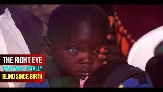 The Healing Of Baby Blessing Apiyo (Totally Blind Eyes)