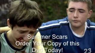 - Movie - Summer Scars!