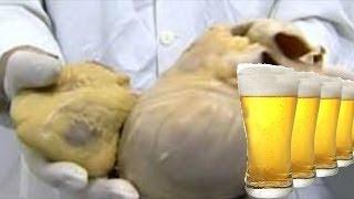 هل تعلم ماذا يحدث لجسمك اذا شربت البيرة كل يوم ؟!