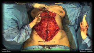 Barbed Sutures in Body Surgery