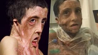 Disfigured Accident Victims