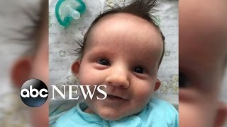 Basset Hounds Wouldn't Leave Dying Infant's Side, Mom Says