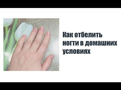 Как отбелить ногти в домашних условиях - FreeVideos.WebSite