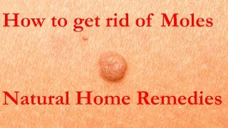 How to get rid of Moles | Natural Home Remedies