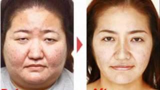 Japanese Plastic Surgery