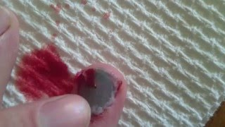 Under nail blood blister pop