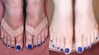 Feet Whitening Pedicure At Home / How To Remove Sun Tan / Skin Whitening Remedy