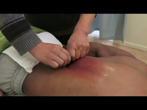 Scraping Massage Gua sha