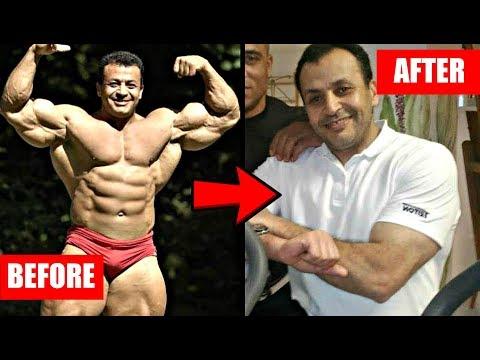 What Happens When Bodybuilders Retire