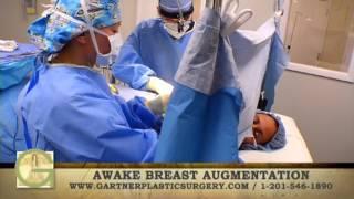 Breast Augmentation Awake Procedure | Gartner Plastic Surgery