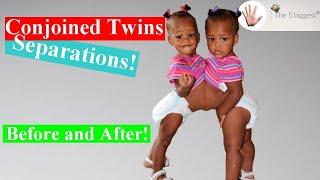 Riskiest Conjoined Twins Separations! Before and After~Body Bizarre