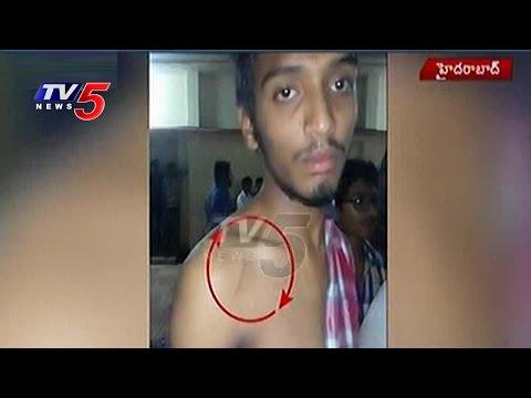 18 Students Severely Beaten Up by Sri Chaitanya Jr College Principal | Hyderabad | TV5 News