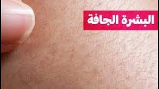 علاج البشرة الجافة والتخلص من تشققات البشرة \ ترطيب وتنعيم البشرة الجافة