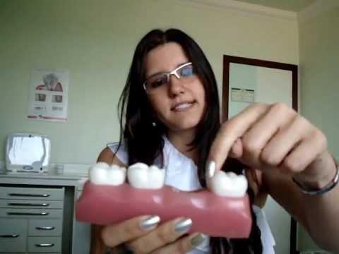Como substituir dentes perdidos