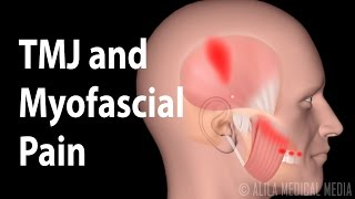 TMJ and  Myofascial Pain Syndrome, Animation.