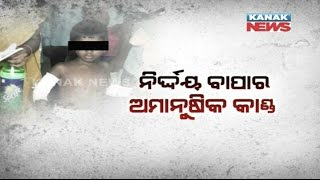 Man Brands 5-Year Old Son With Hot Iron In Bhubaneswar