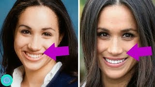 Meghan Markle Transformation, Weight Loss  and Plastic Surgery