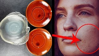 Rose Water And Lemon Face Pack For Acne Free Skin