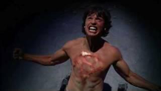Smallville: Evil Clark Kent - It's My Life