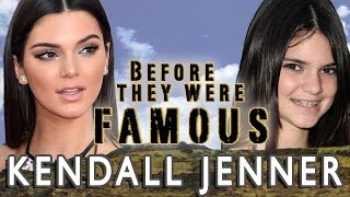 Kendall Jenner - Before They Were Famous