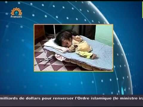 Recrudescence des malformations à la naissance en Irak