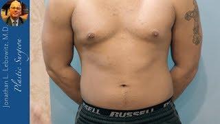 Gynecomastia Glands & Extra Nipple Surgery, The Long Island Gynecomastia Center, NY By Dr. Lebowitz
