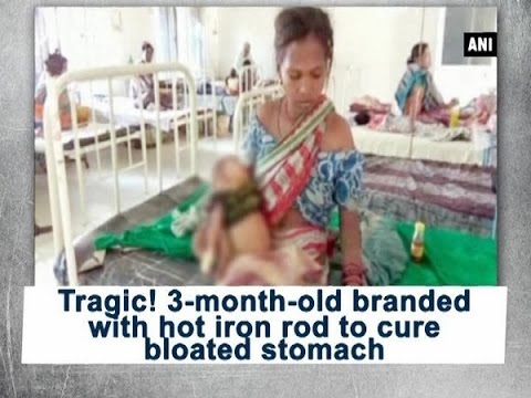 Tragic! 3-month-old branded with hot iron rod to cure bloated stomach - ANI #News
