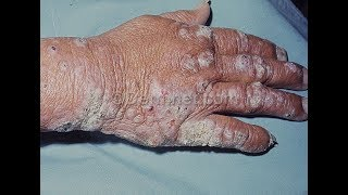 What is Hansen's Disease leprosy? Causes, symptoms and treatment of Hansen's Disease leprosy