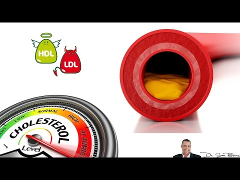 Xxx Mp4 Cholesterol Levels Chart Explanation HDL And LDL Cholesterol 3gp Sex