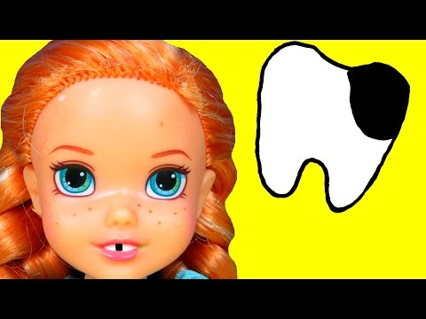 DENTIST Sugar Bugs ANNA toddler loses a TOOTH Afraid of Dentist Little ELSA is there too