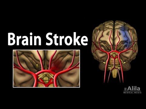 Xxx Mp4 Brain Stroke Types Of Causes Pathology Symptoms Treatment And Prevention Animation 3gp Sex