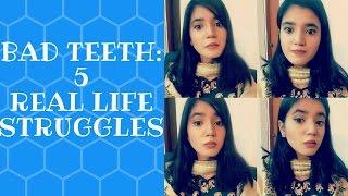 5 Struggles of Having Bad Teeth