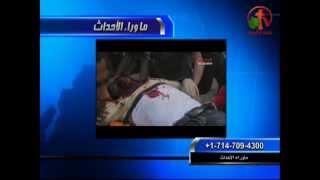 مكالمة من والد هلال صابر الذي يعاني من حروق شديدة في حادث الكاتدرائية