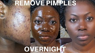 How To Remove Pimples Overnight | Acne Treatment