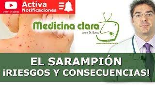 El Sarampión   Síntomas, diagnóstico y tratamiento del Sarampión
